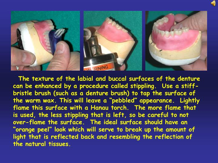 "The texture of the labial and buccal surfaces of the denture can be enhanced by a procedure called stippling.  Use a stiff-bristle brush (such as a denture brush) to tap the surface of the warm wax. This will leave a ""pebbled"" appearance.  Lightly flame this surface with a Hanau torch.  The more flame that is used, the less stippling that is left, so be careful to not over-flame the surface.  The ideal surface should have an ""orange peel"" look which will serve to break up the amount of light that is reflected back and resembling the reflection of the natural tissues."