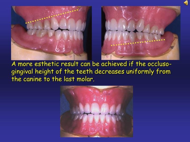A more esthetic result can be achieved if the occluso-gingival height of the teeth decreases uniformly from the canine to the last molar.