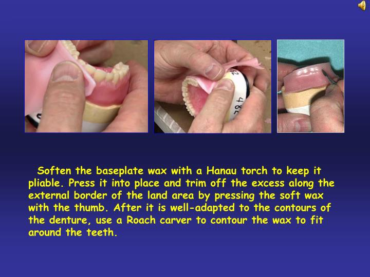 Soften the baseplate wax with a Hanau torch to keep it pliable. Press it into place and trim off t...