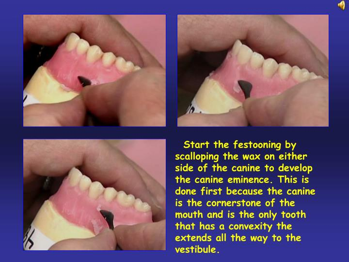 Start the festooning by scalloping the wax on either side of the canine to develop the canine eminence. This is done first because the canine is the cornerstone of the mouth and is the only tooth that has a convexity the extends all the way to the vestibule.