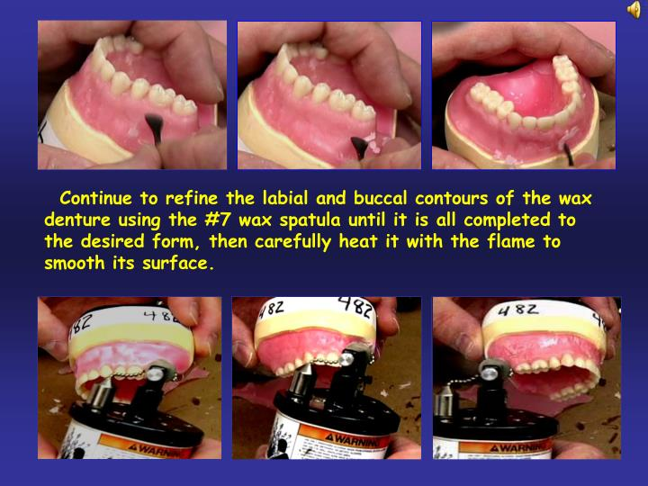 Continue to refine the labial and buccal contours of the wax denture using the #7 wax spatula until it is all completed to the desired form, then carefully heat it with the flame to smooth its surface.
