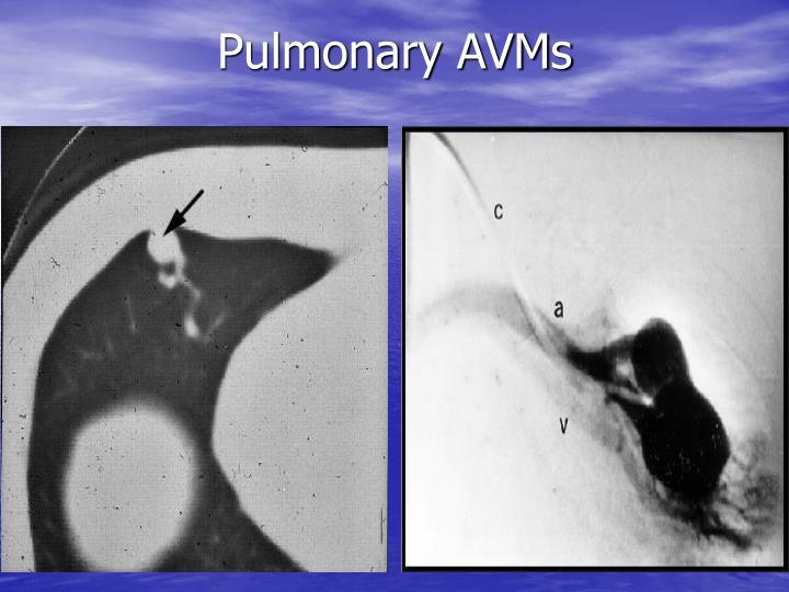 Pulmonary AVMs