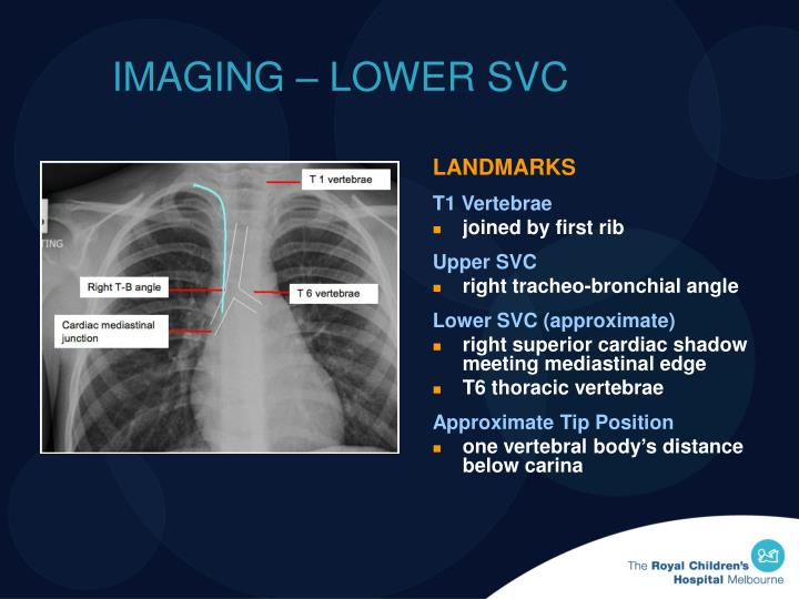 IMAGING – LOWER SVC