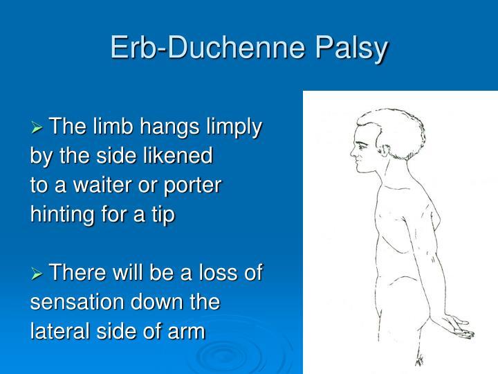 Erb-Duchenne Palsy