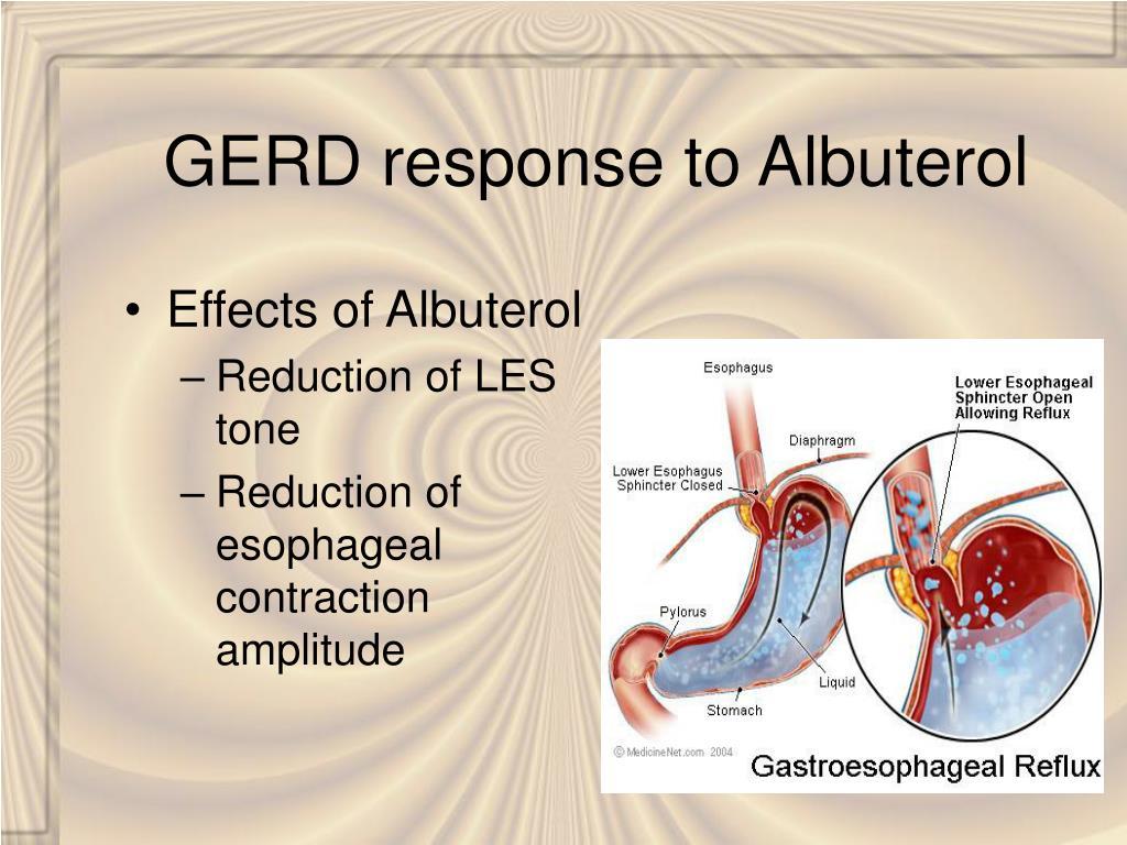 GERD response to Albuterol