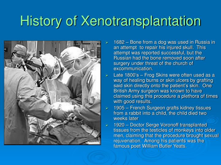 History of xenotransplantation