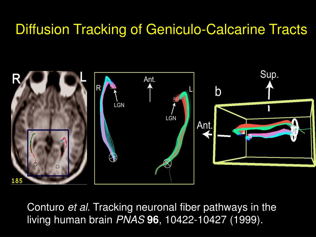 Diffusion Tracking of Geniculo-Calcarine Tracts