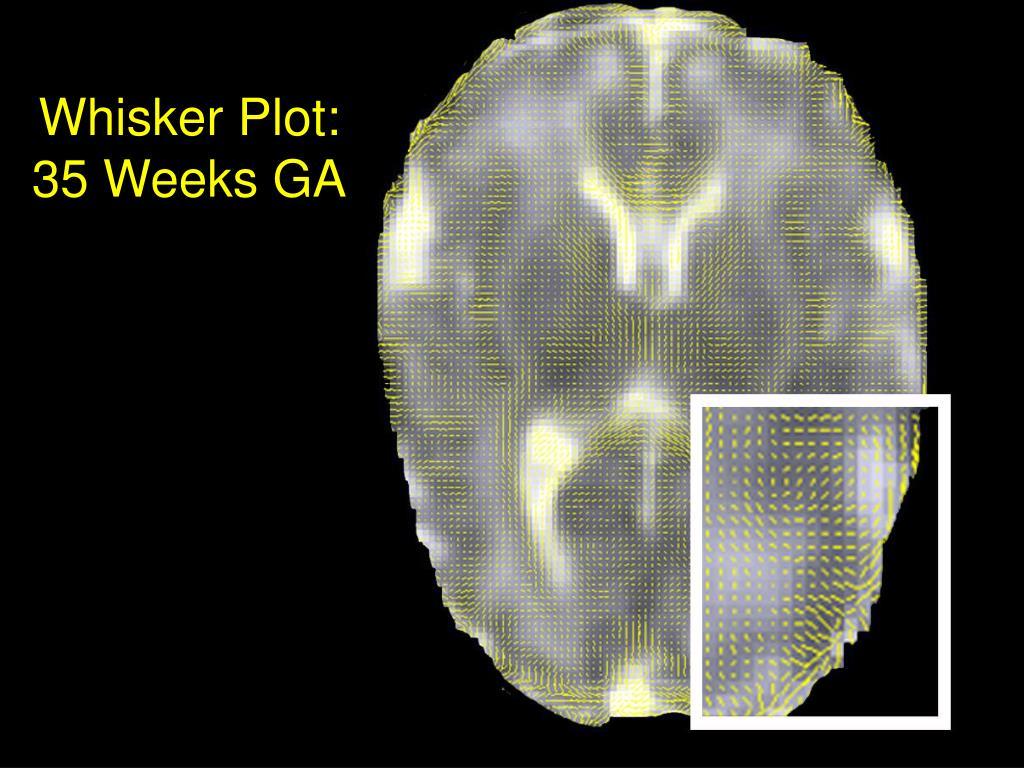 Whisker Plot:  35 Weeks GA
