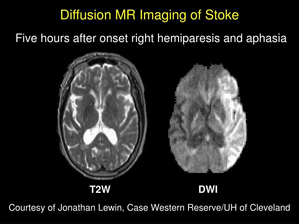 Diffusion MR Imaging of Stoke