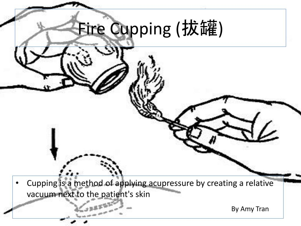 Fire Cupping (拔罐)