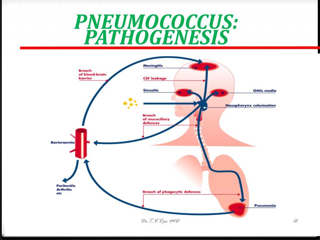 PNEUMOCOCCUS: PATHOGENESIS