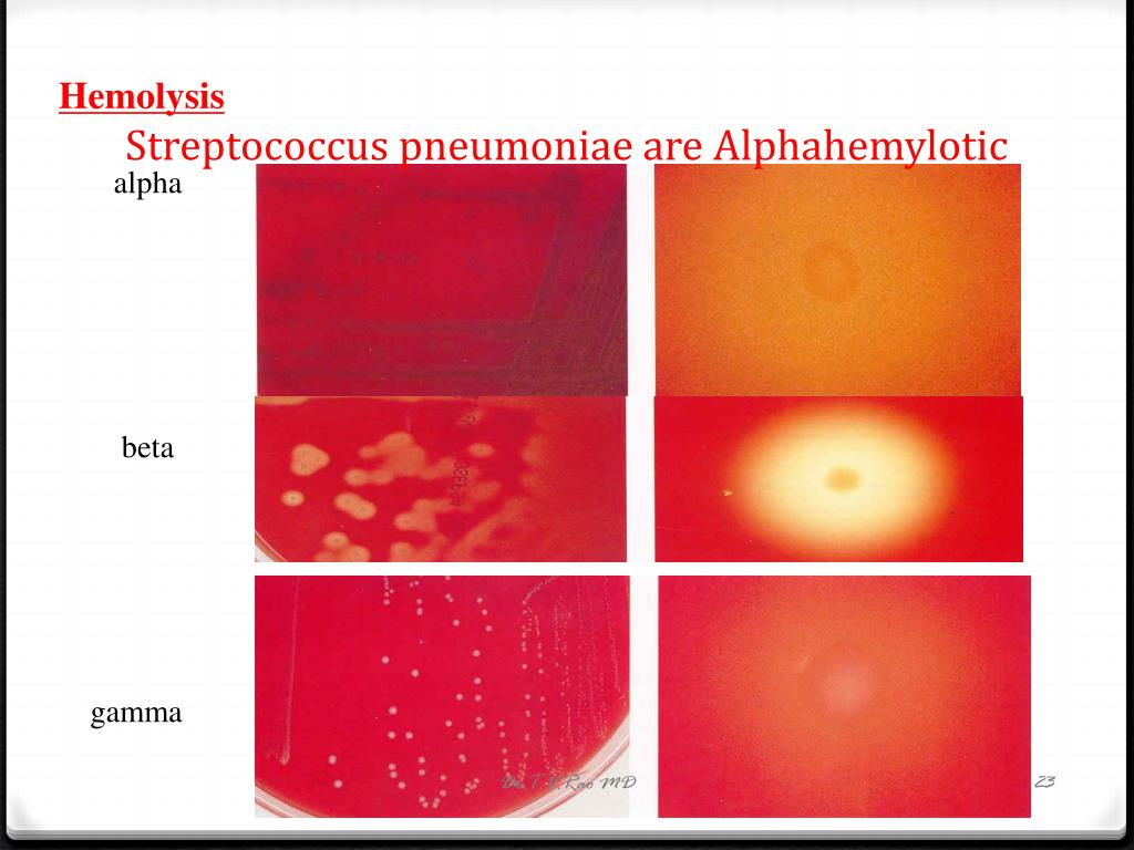 Streptococcus pneumoniae are Alphahemylotic
