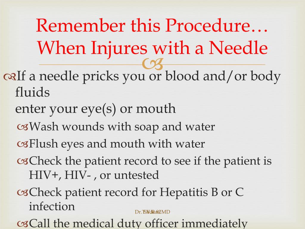 Remember this Procedure