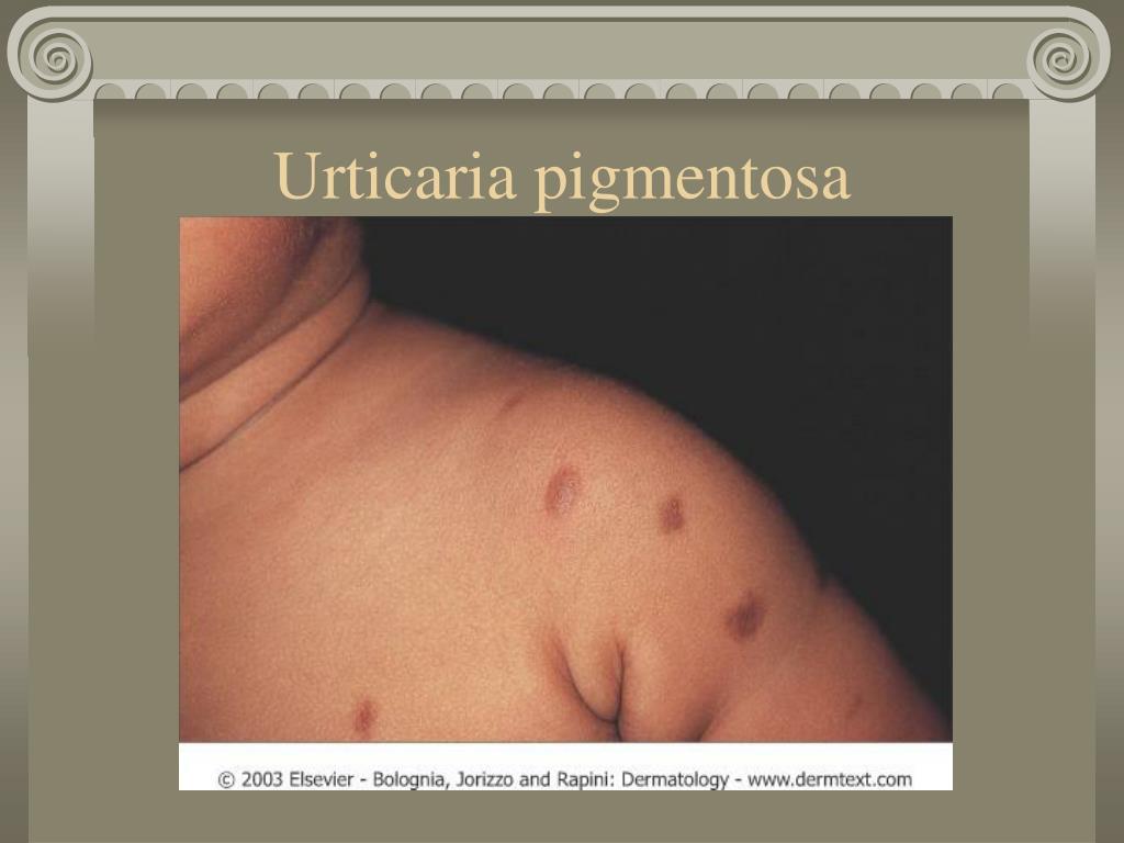 Urticaria pigmentosa