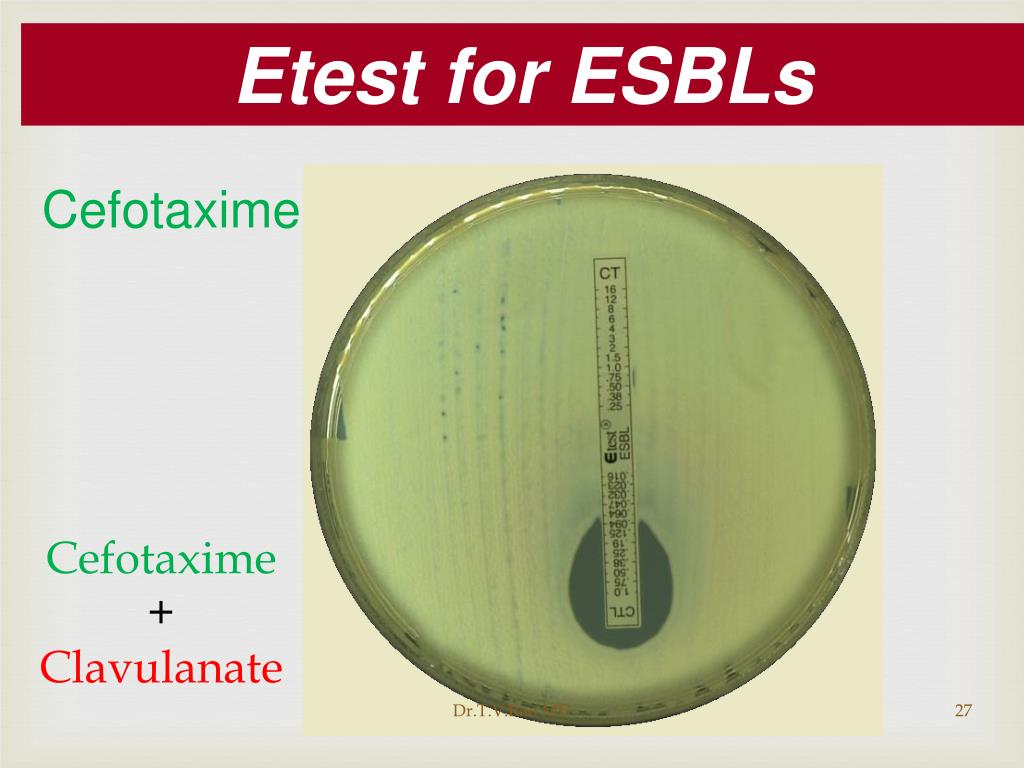 Etest for ESBLs