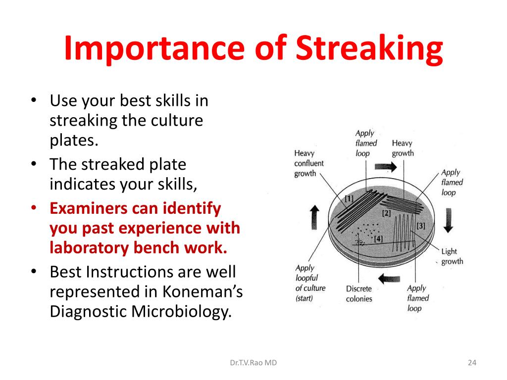 Importance of Streaking