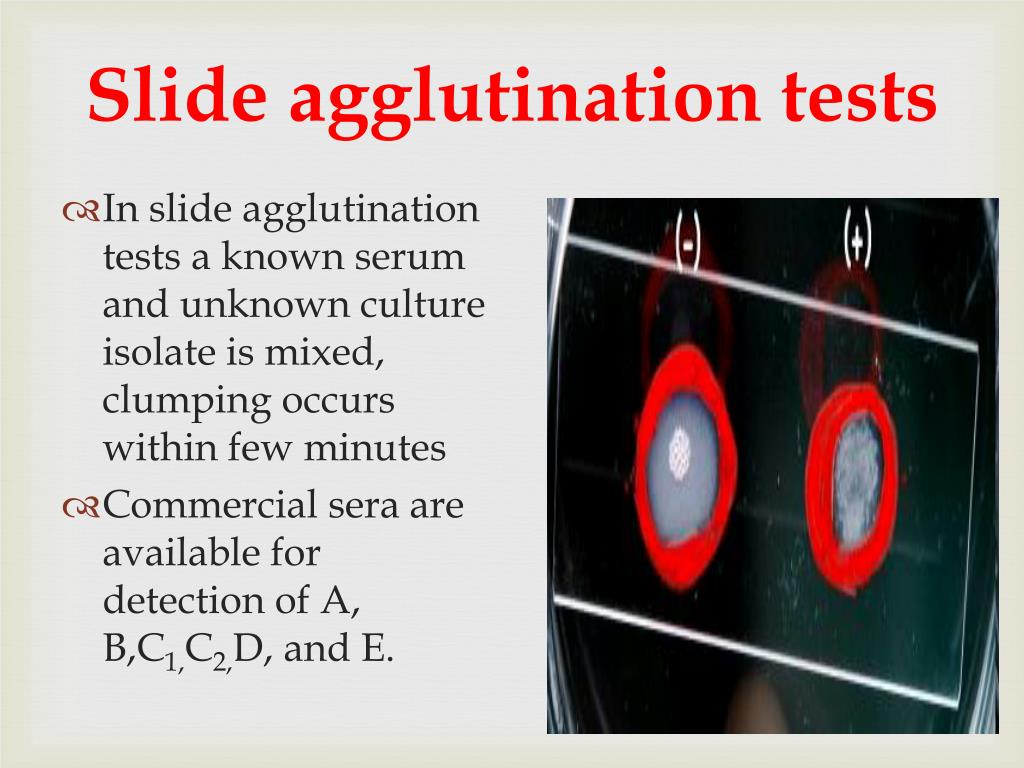 Slide agglutination tests