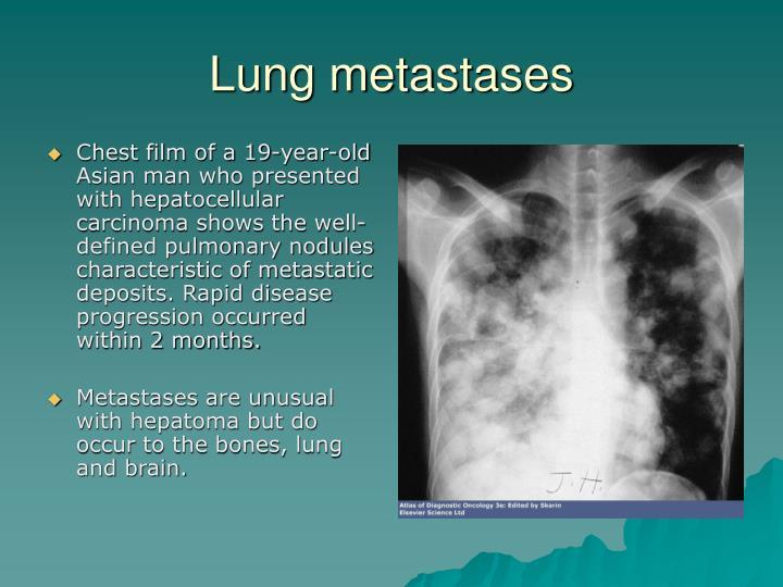 Lung metastases