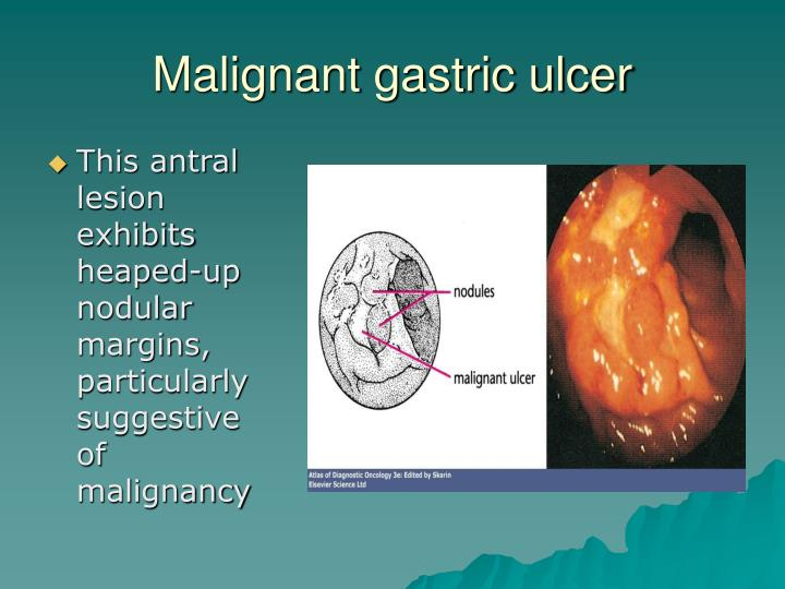 Malignant gastric ulcer