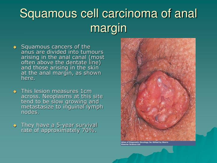 Squamous cell carcinoma of anal margin