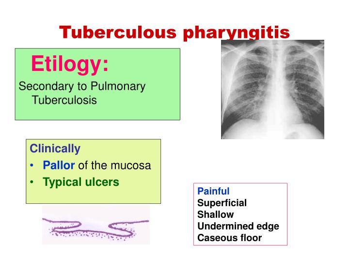 Tuberculous pharyngitis