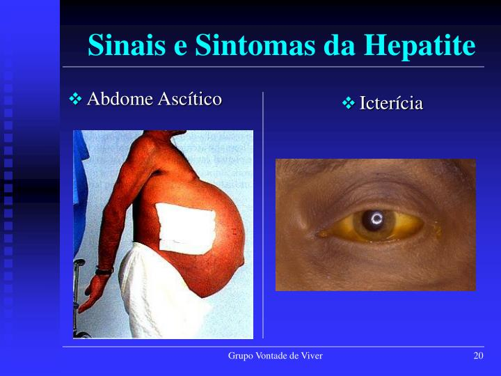 Sinais e Sintomas da Hepatite