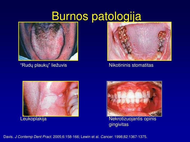 Burnos patologija