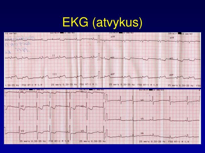 EKG (atvykus)