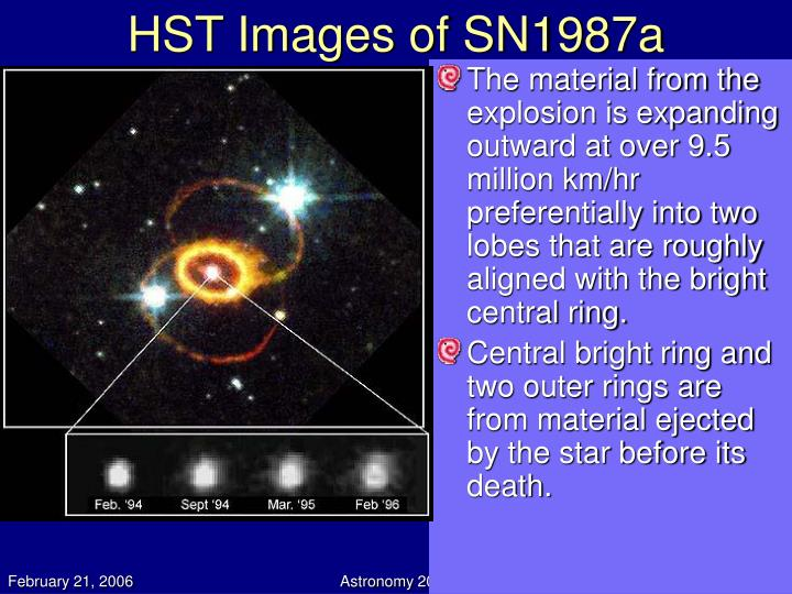 HST Images of SN1987a