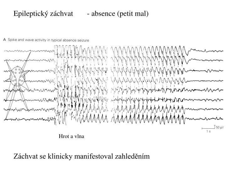 Epileptický záchvat