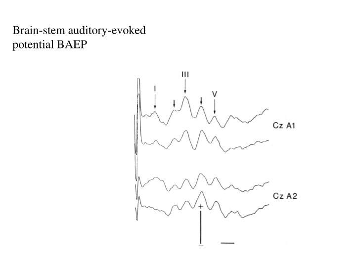 Brain-stem auditory-evoked potential BAEP