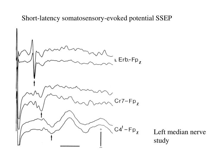 Short-latency somatosensory-evoked potential SSEP