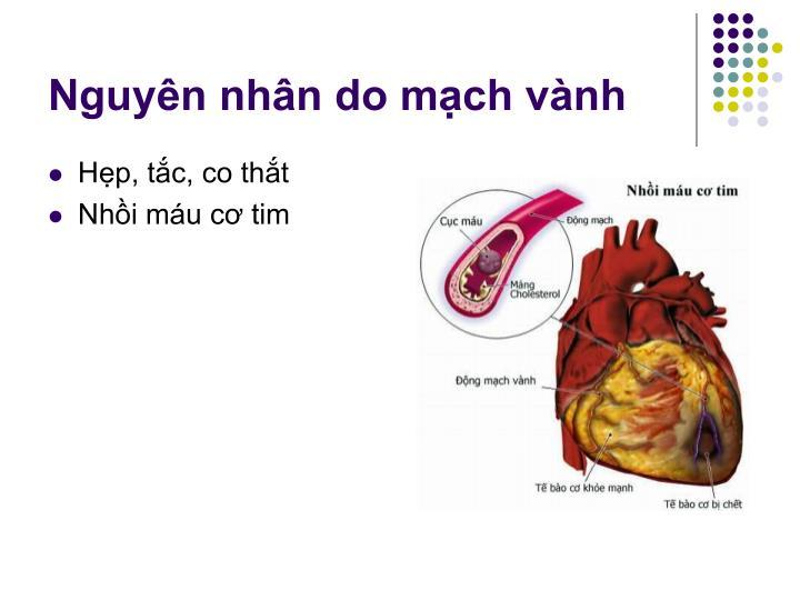 Nguyên nhân do mạch vành