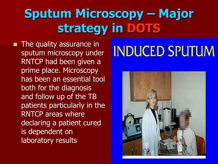 Sputum Microscopy – Major strategy in