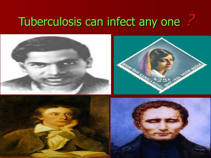 Tuberculosis can infect any one