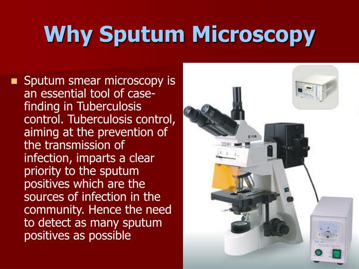 Why Sputum Microscopy