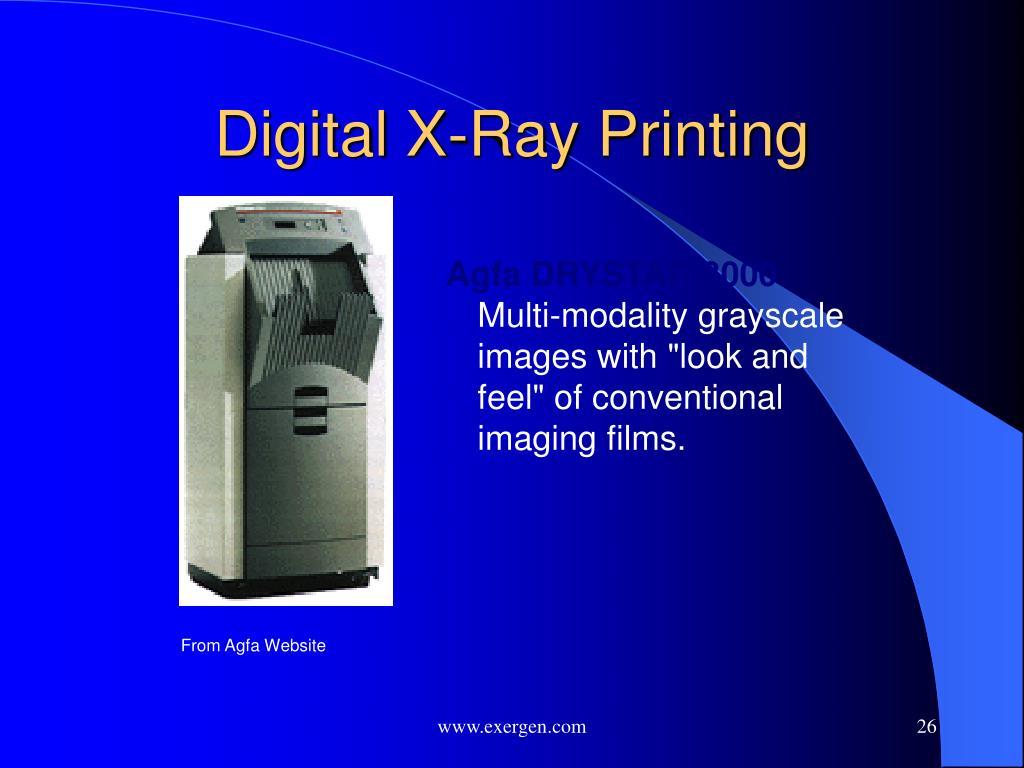 Digital X-Ray Printing