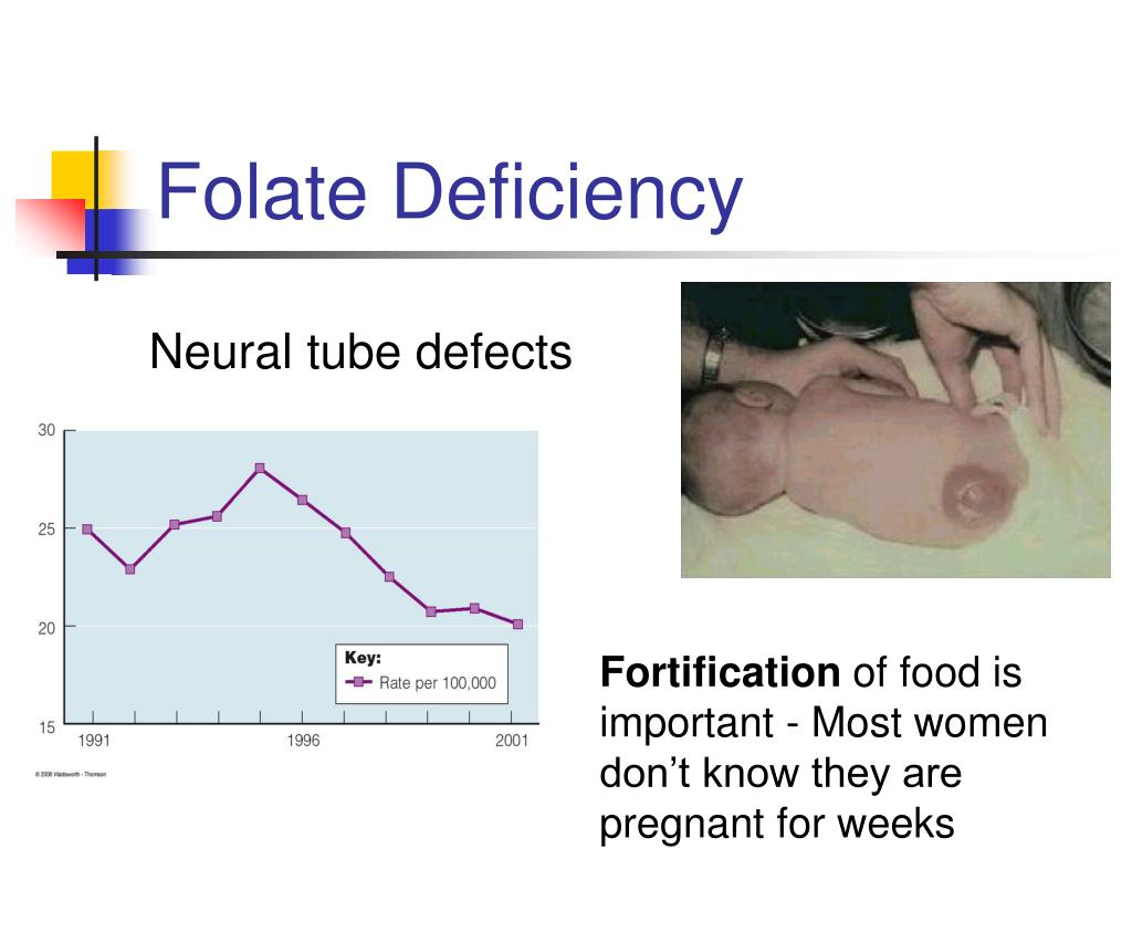 Folate Deficiency