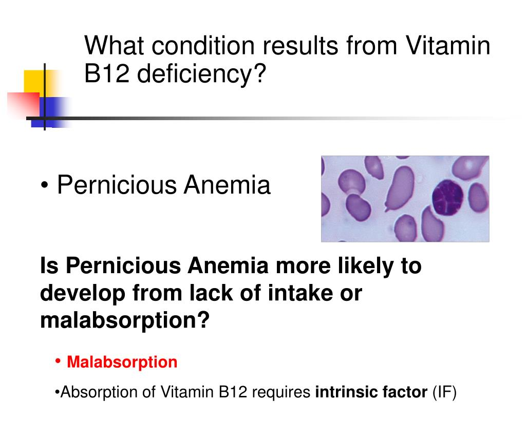 What condition results from Vitamin B12 deficiency?