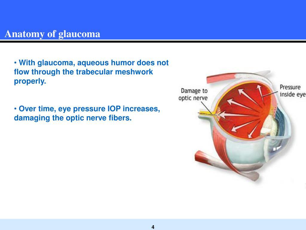 Anatomy of glaucoma