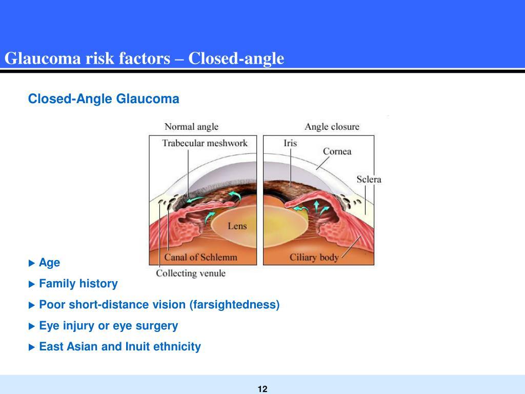 Glaucoma risk factors – Closed-angle