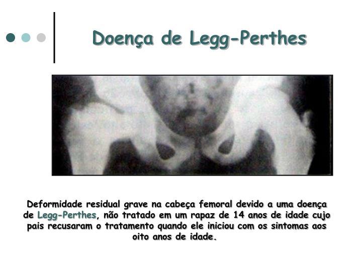 Doença de Legg-Perthes