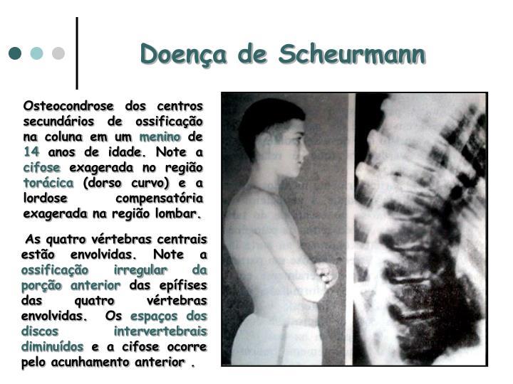 Doença de Scheurmann