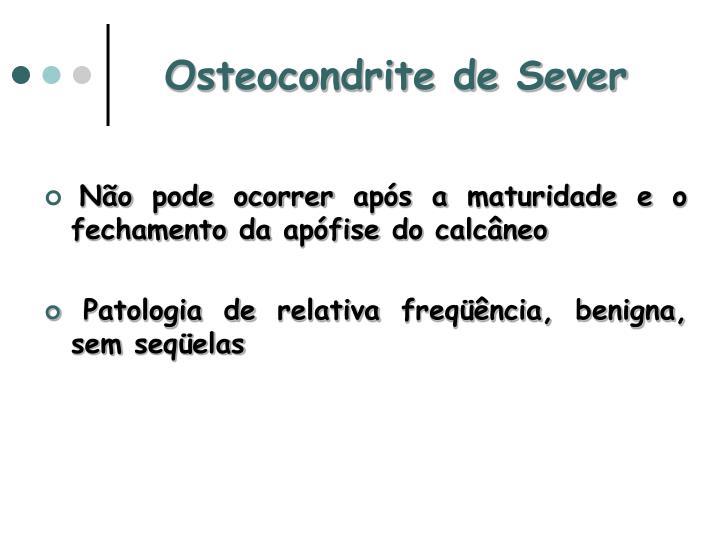 Osteocondrite de Sever