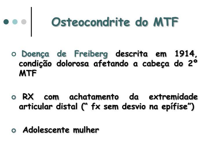 Osteocondrite do MTF