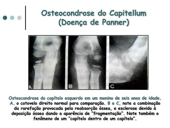 Osteocondrose do Capitellum (Doença de Panner)