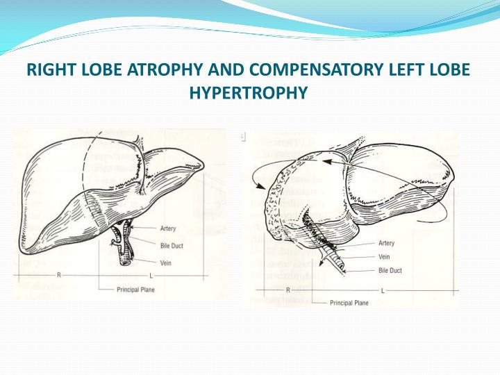 RIGHT LOBE ATROPHY AND COMPENSATORY LEFT LOBE HYPERTROPHY
