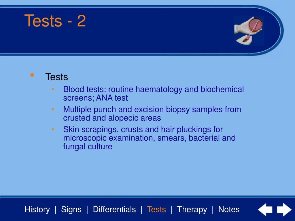 Tests - 2