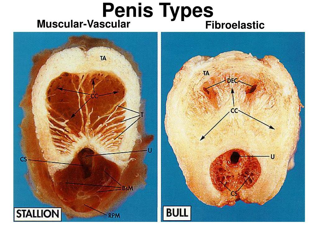 Penis Types