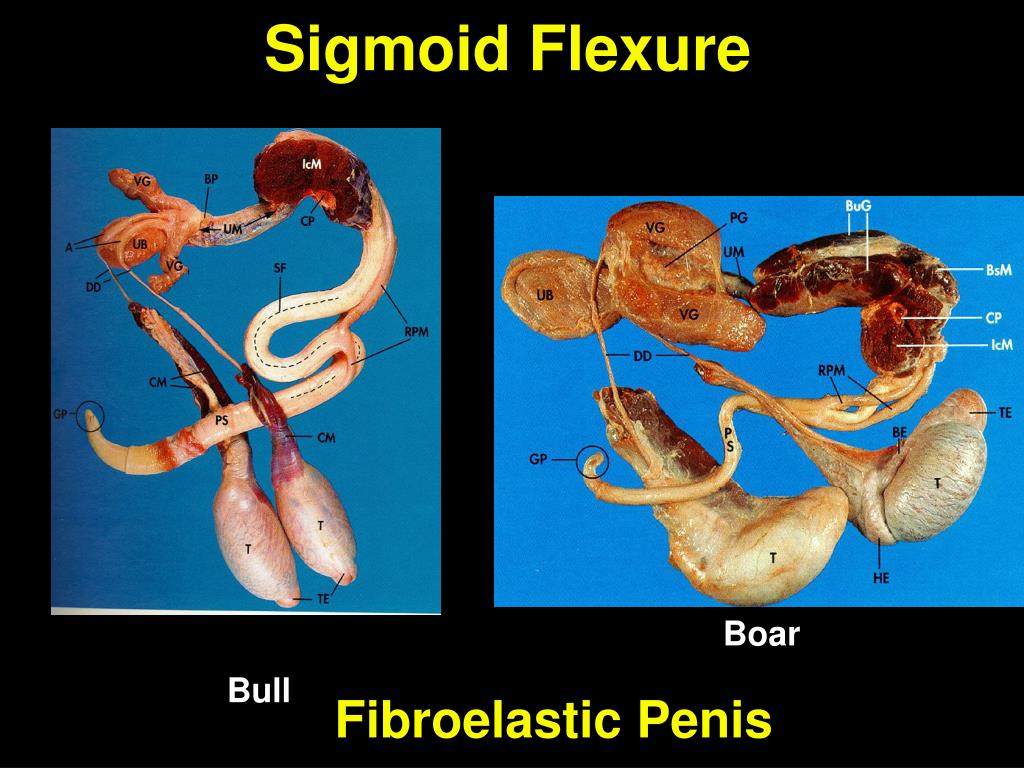 Sigmoid Flexure